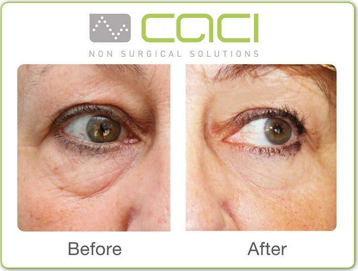 Before and after CACI Treatment