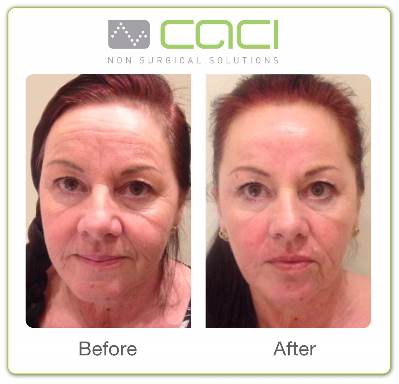 Before and after images following CACI Treatment